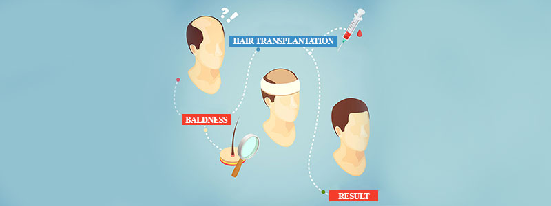 16-dos-and-donts-for-a-successful-hair-transplant